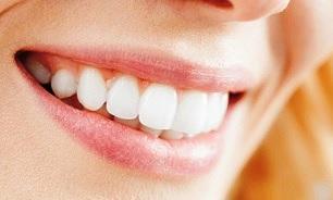 dent blanche orthodontie